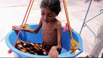 Aid group: 85,000 children may have died of hunger in Yemen