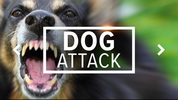 Police report: Man attacked by Pitbull in Orange, received